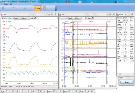 PULMODYN Data Acquisition Software for Respiratory Experiments